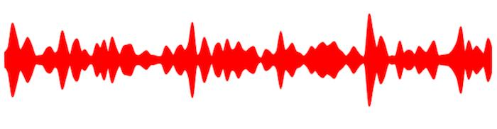 Sparemin Audiogram